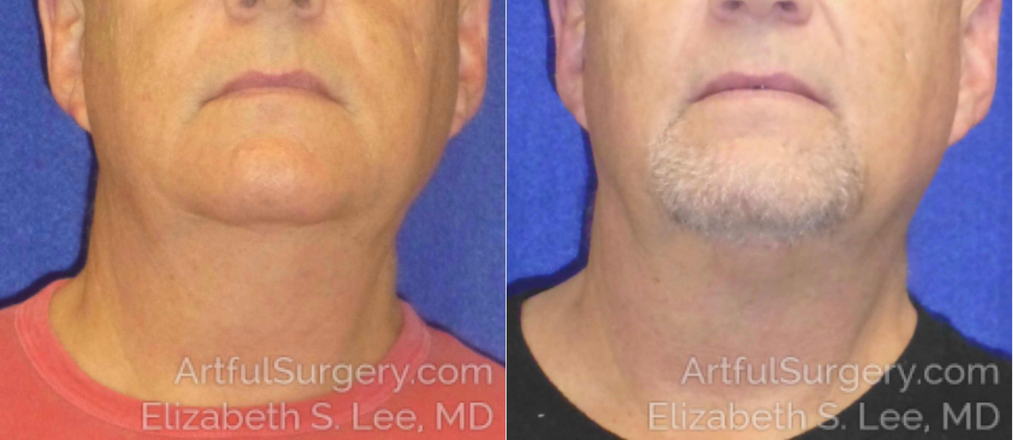 CoolSculpting Before & After Patient #2557