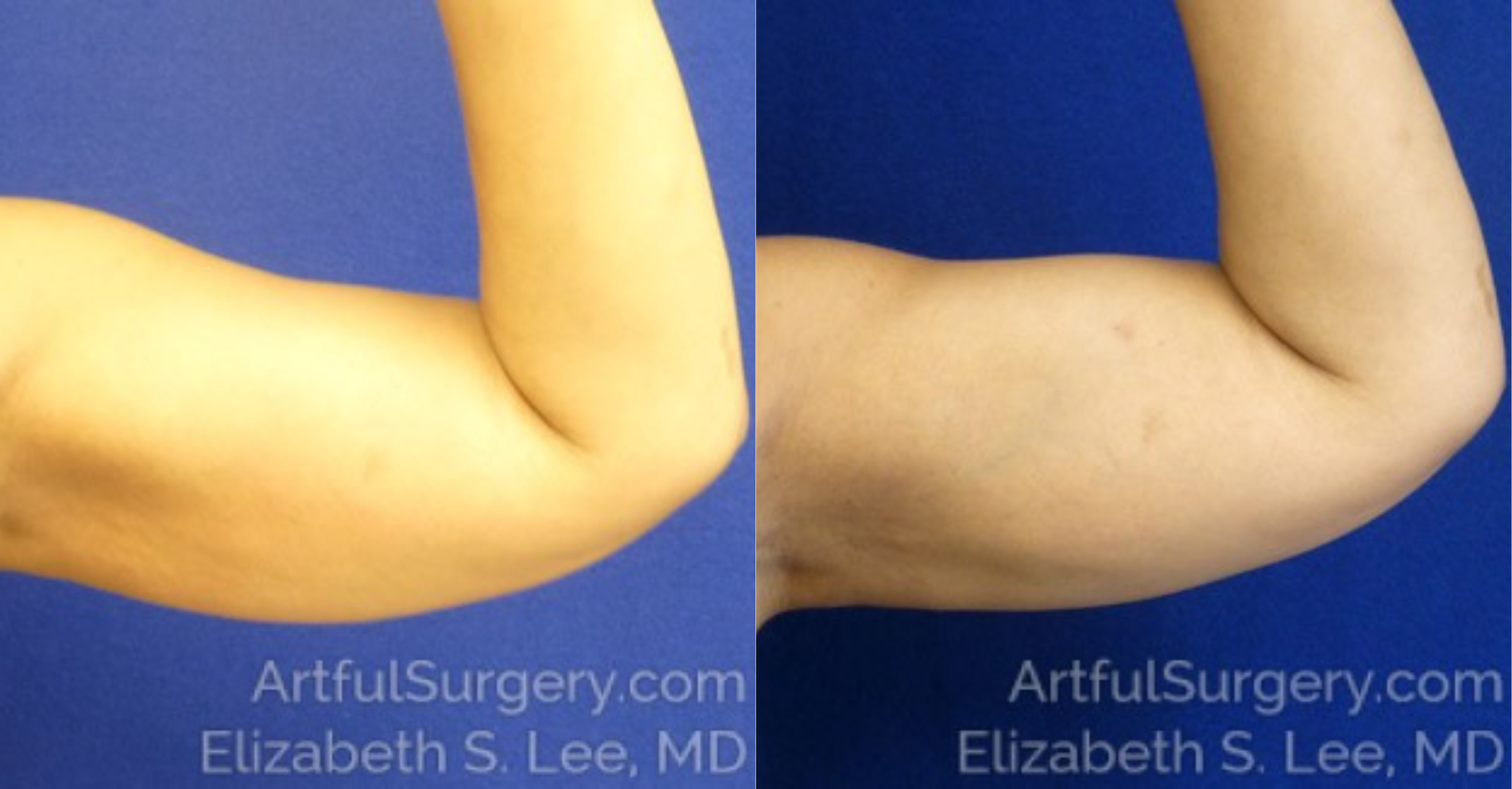CoolSculpting Before & After Patient #9730