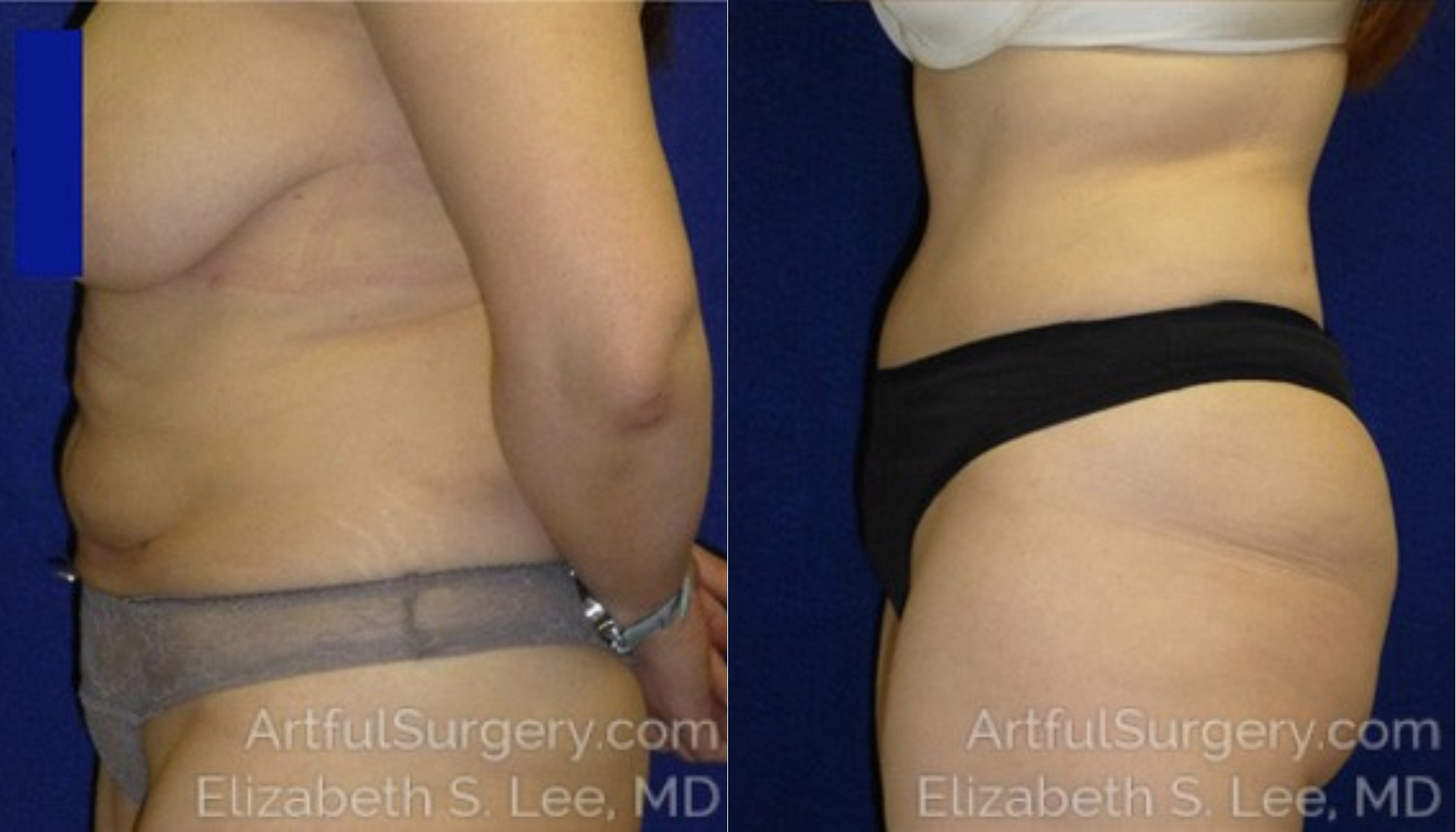 Tummy Tuck Before & After Patient #6180