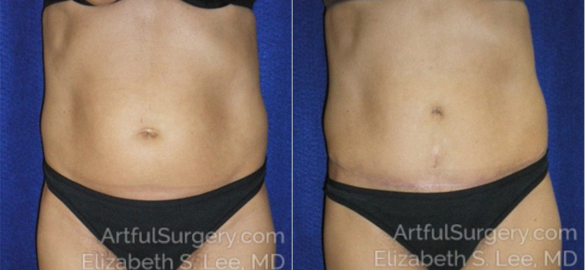 Tummy Tuck Before & After Patient #6030