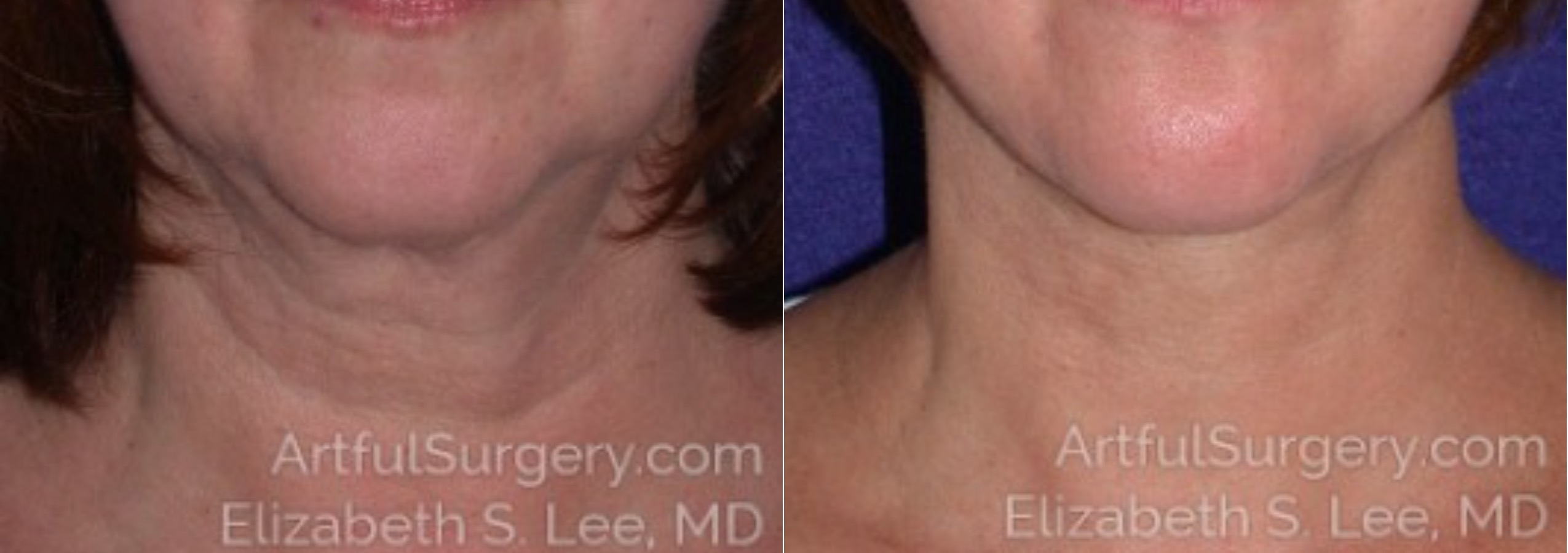 Neck Lift Before & After Patient #8360