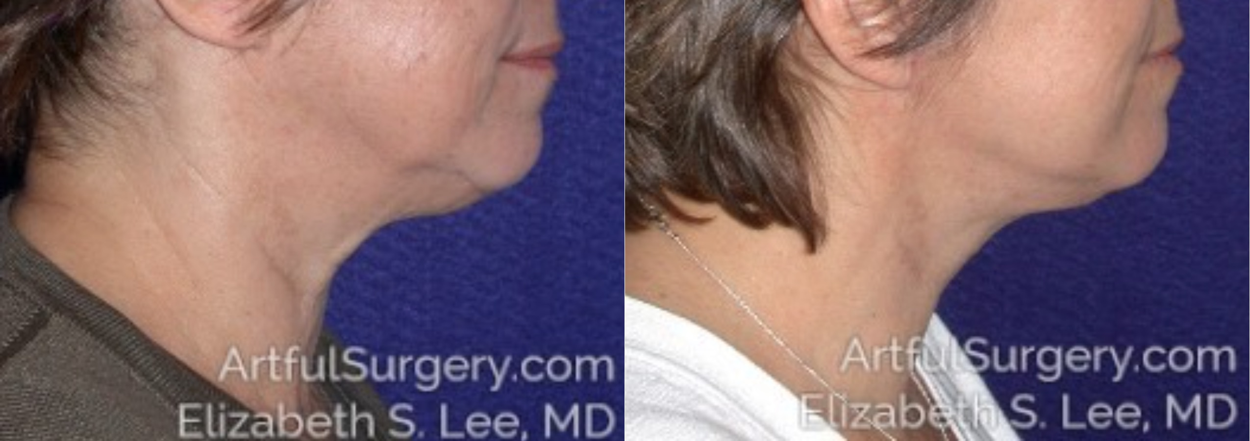 Neck Lift Before & After Patient #8410