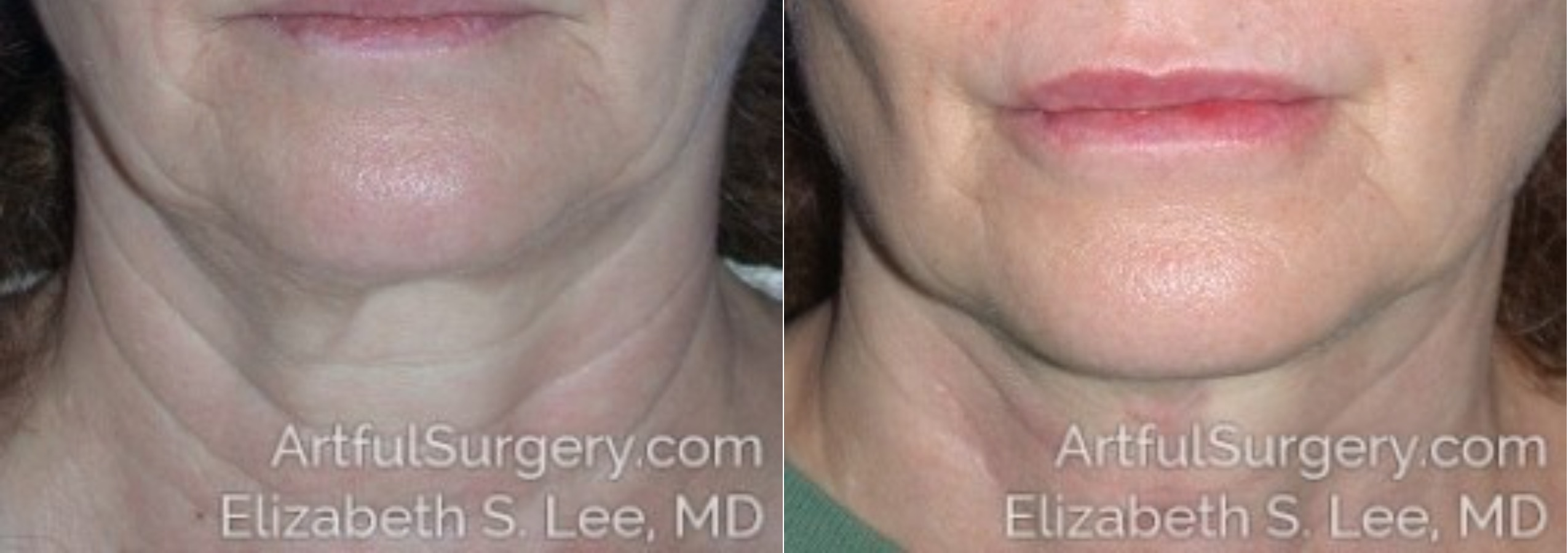 Neck Lift Before & After Patient #8560
