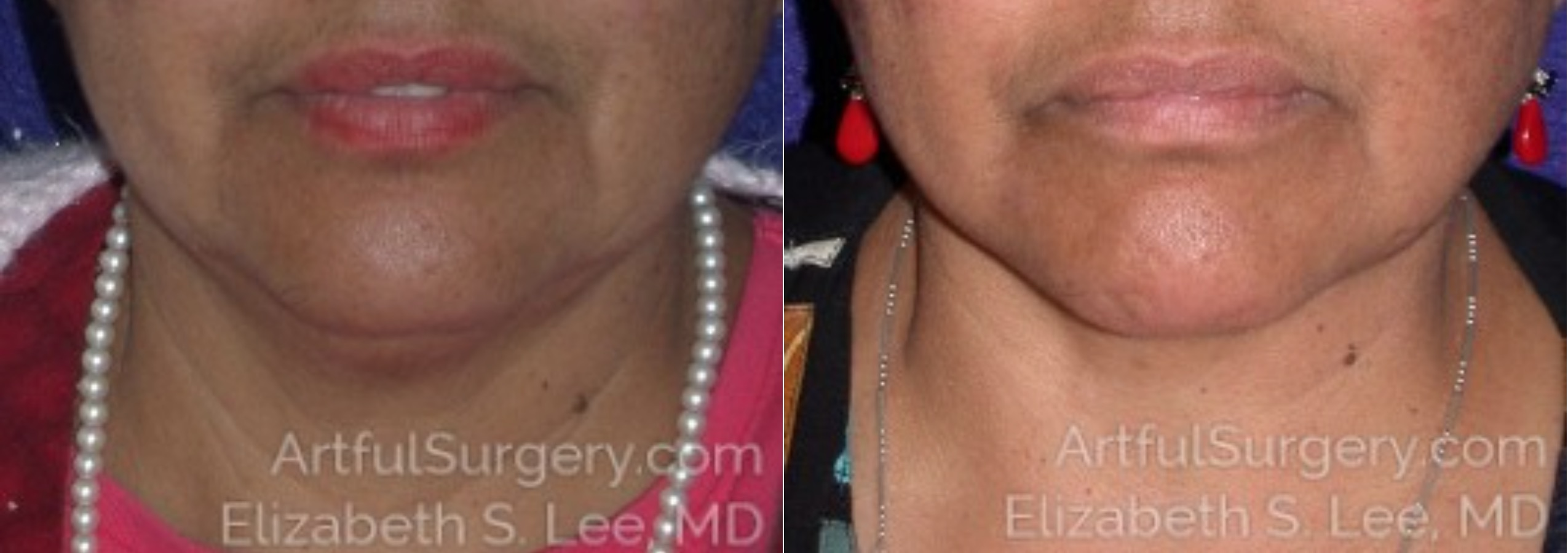 Neck Lift Before & After Patient #8610
