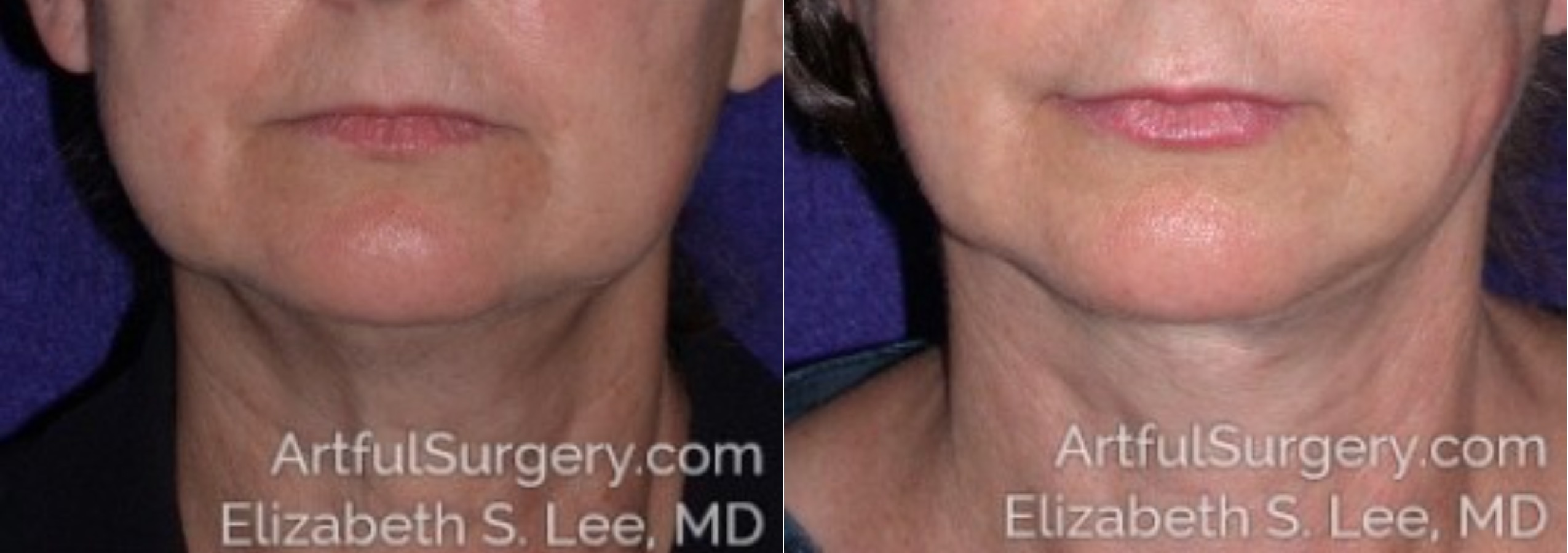 Neck Lift Before & After Patient #8510