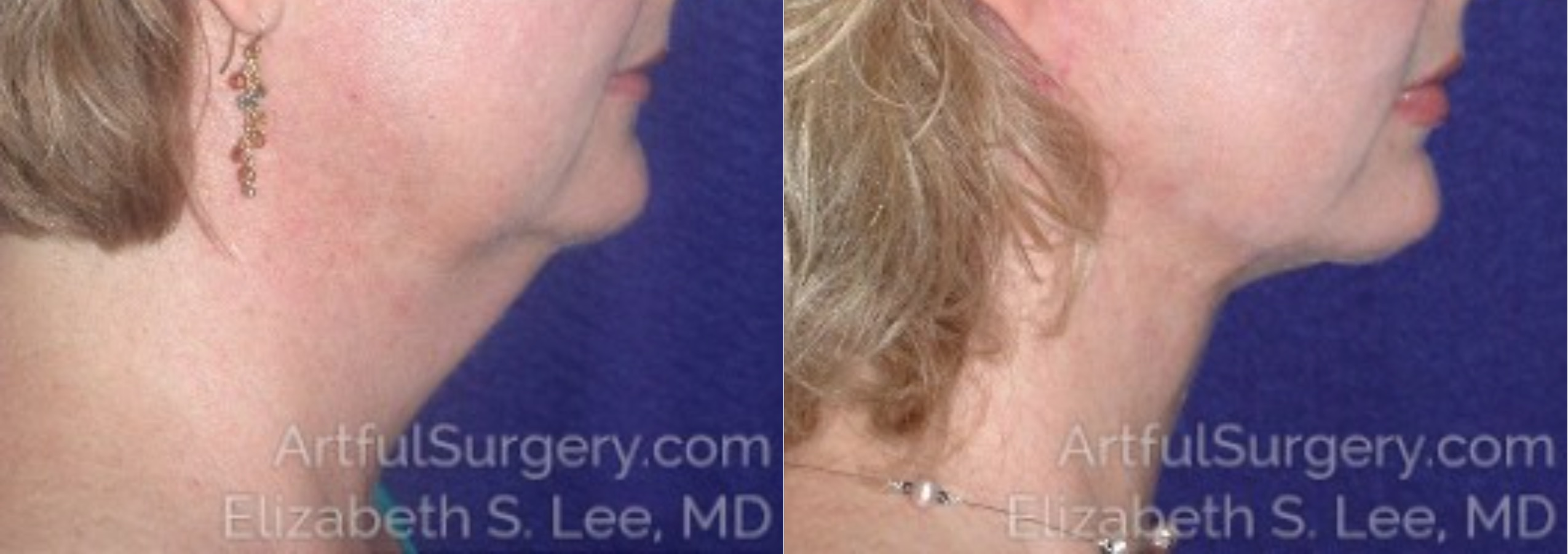 Neck Lift Before & After Patient #8660