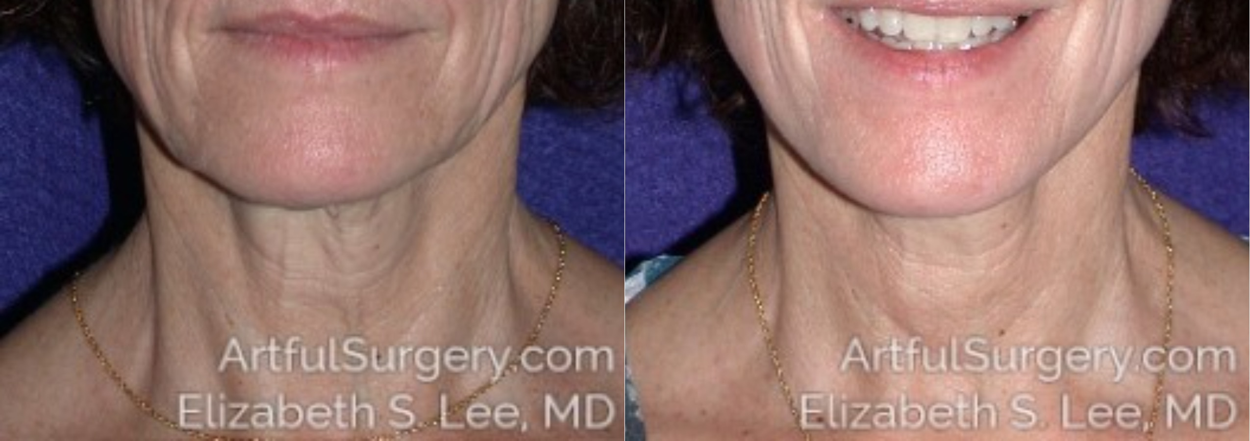 Neck Lift Before & After Patient #8460