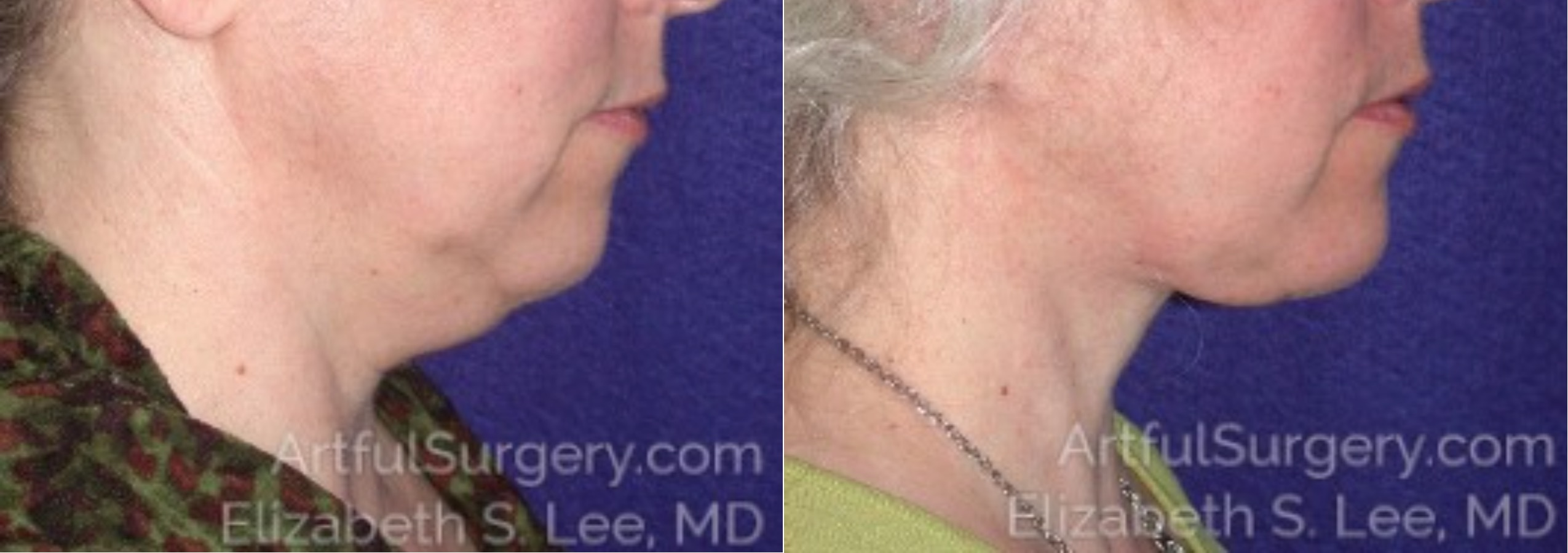 Neck Lift Before & After Patient #8710