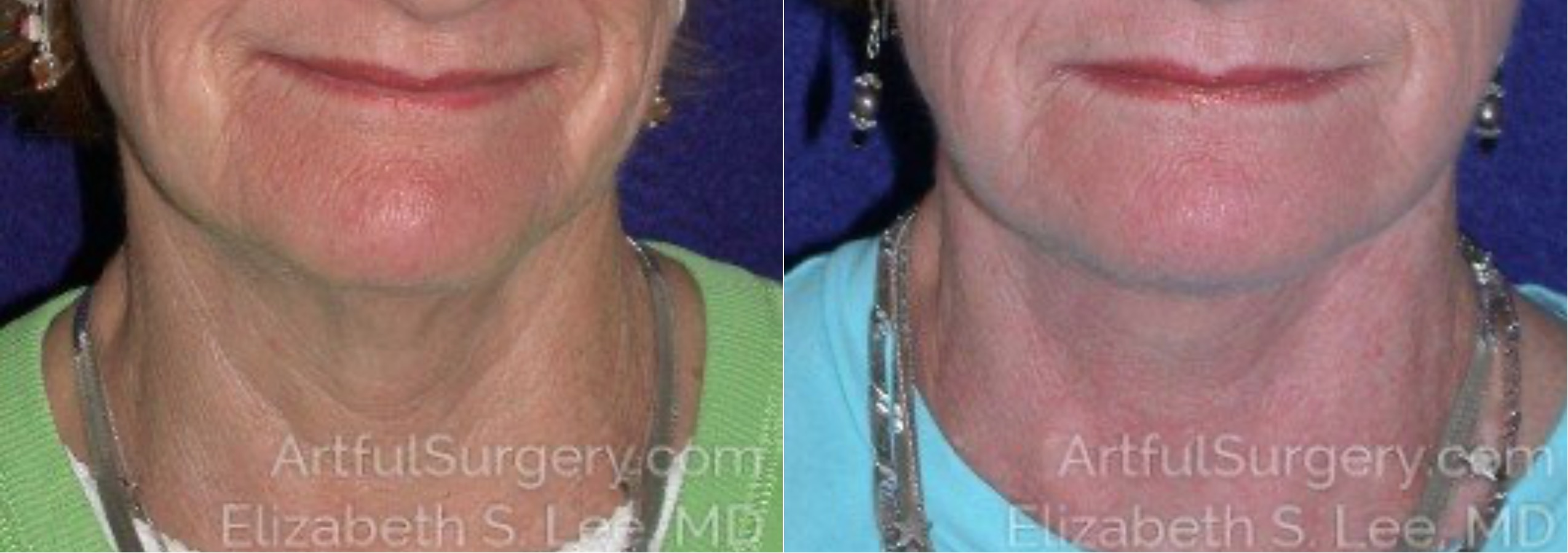 Neck Lift Before & After Patient #8860
