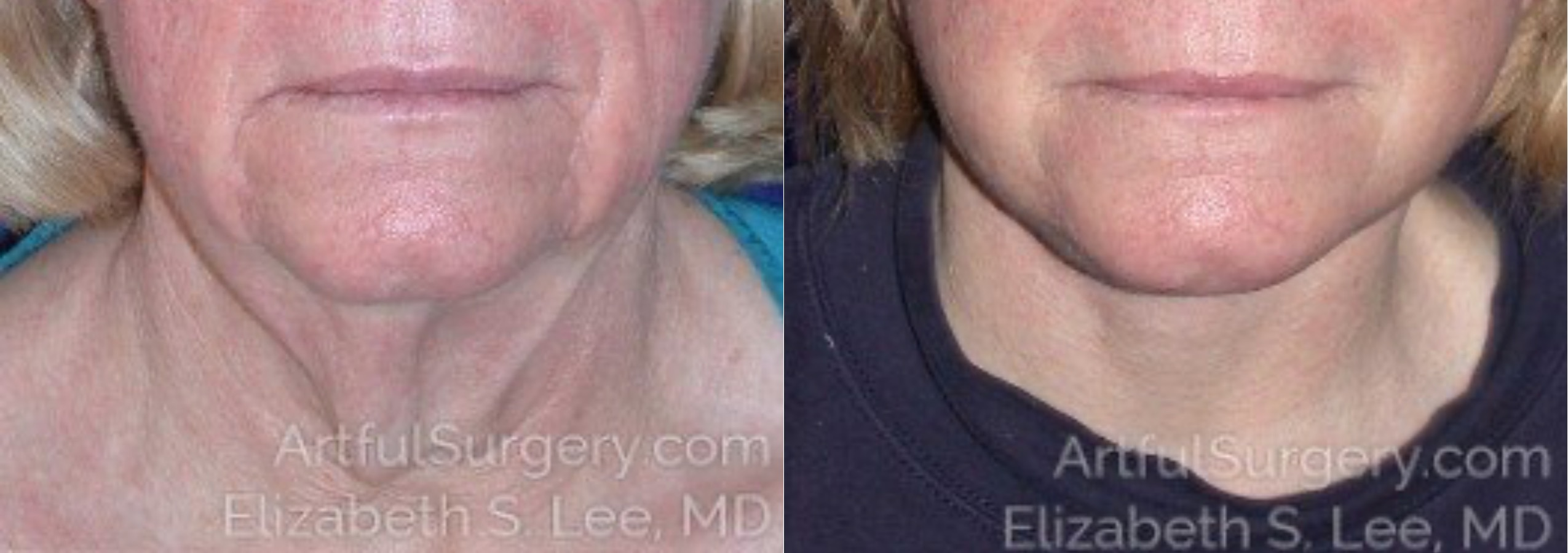 Neck Lift Before & After Patient #8810