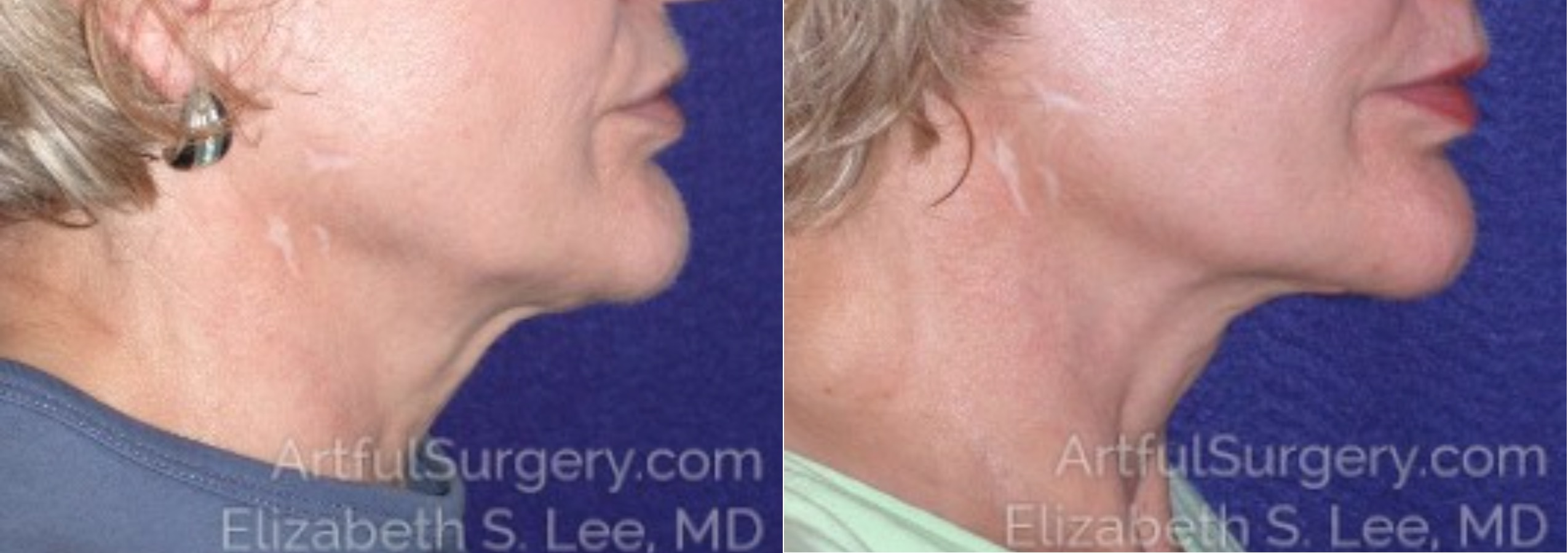Neck Lift Before & After Patient #8770