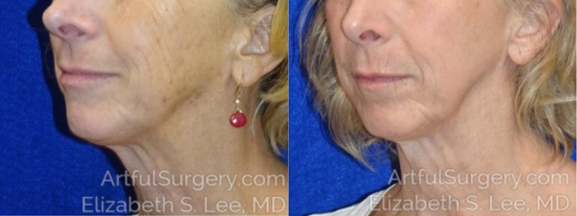 Halo Before & After Patient #3651