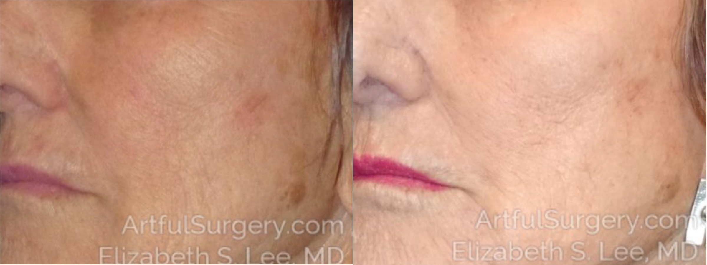 Halo Before & After Patient #3636