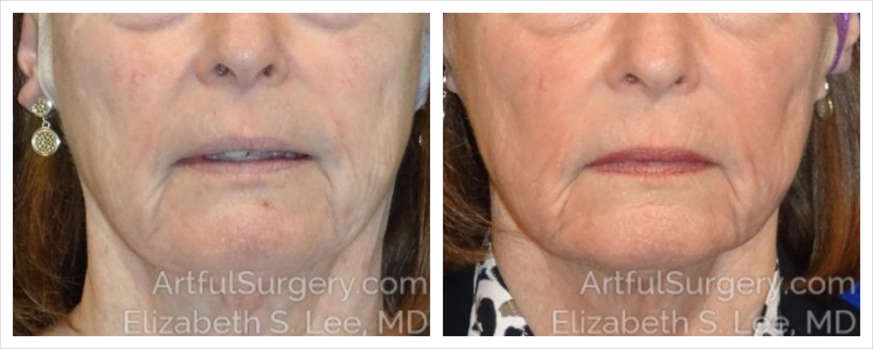 Halo Before & After Patient #3656