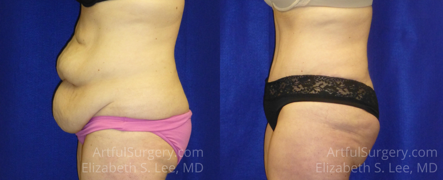 Tummy Tuck Before & After Patient #6280