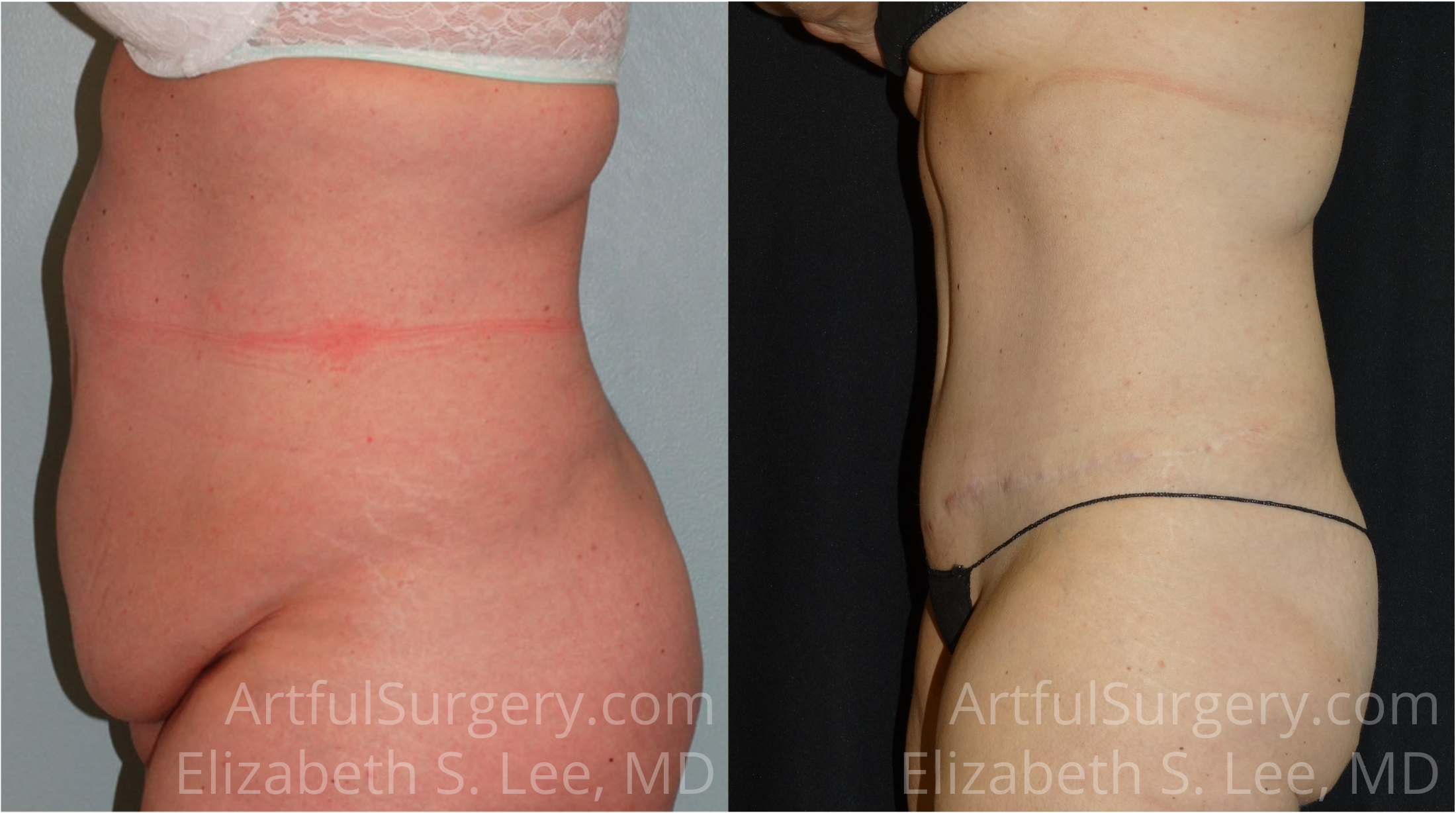 Tummy Tuck Before & After Patient #6330