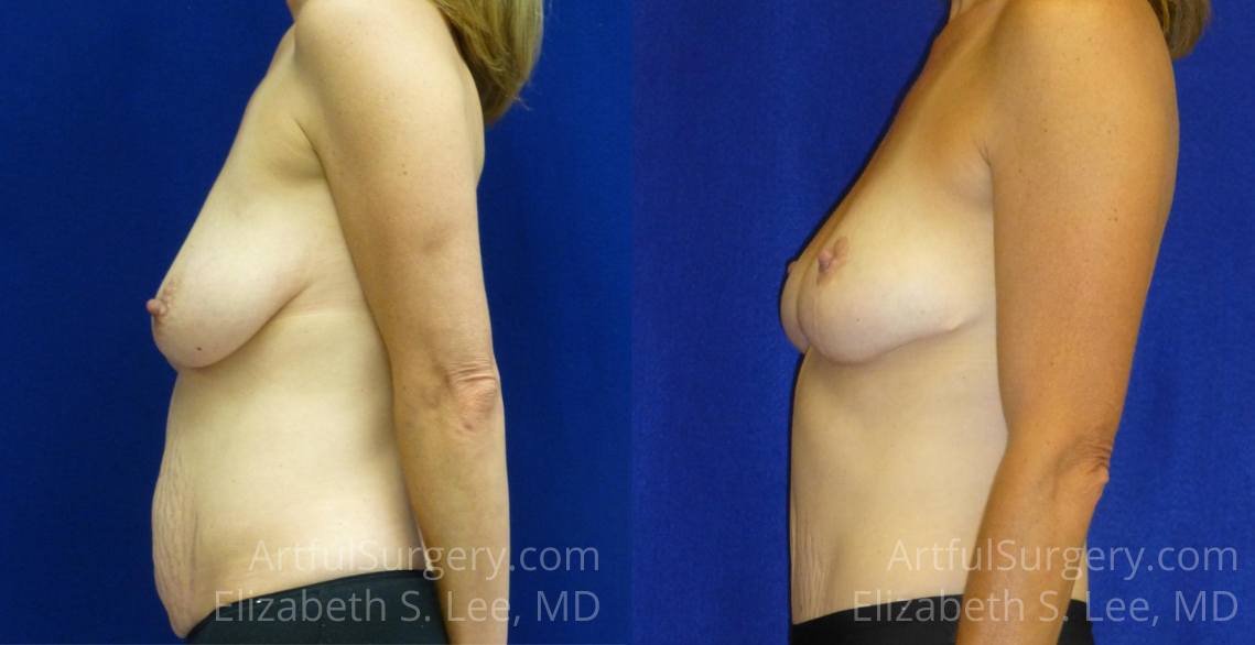 Mommy Makeover Before & After Patient #6071