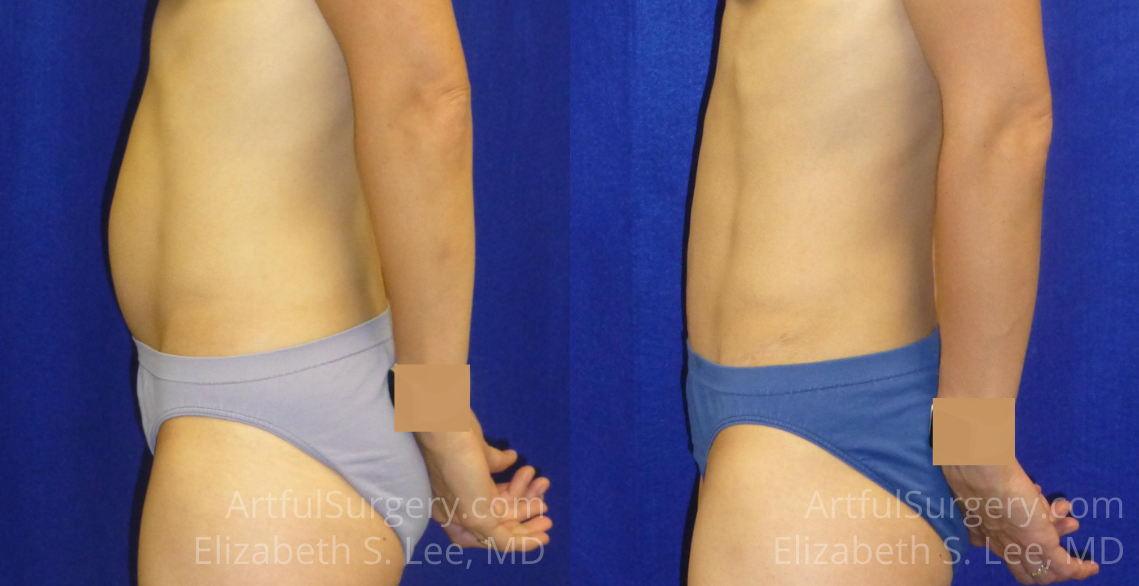 Tummy Tuck Before & After Patient #6374