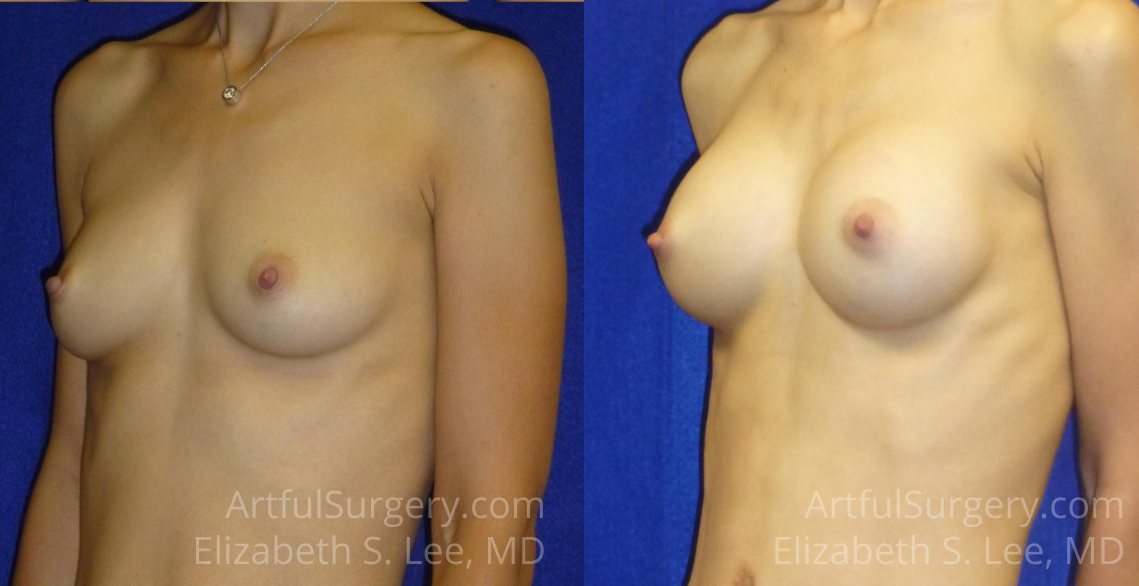 Breast Augmentation Before & After Patient #6374