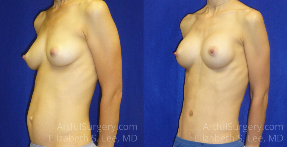 Mommy Makeover Before & After Patient #6374