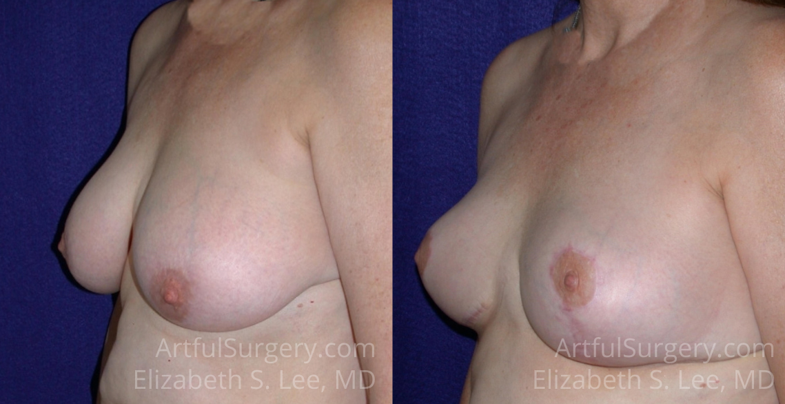 Breast Reduction Before & After Patient #1335