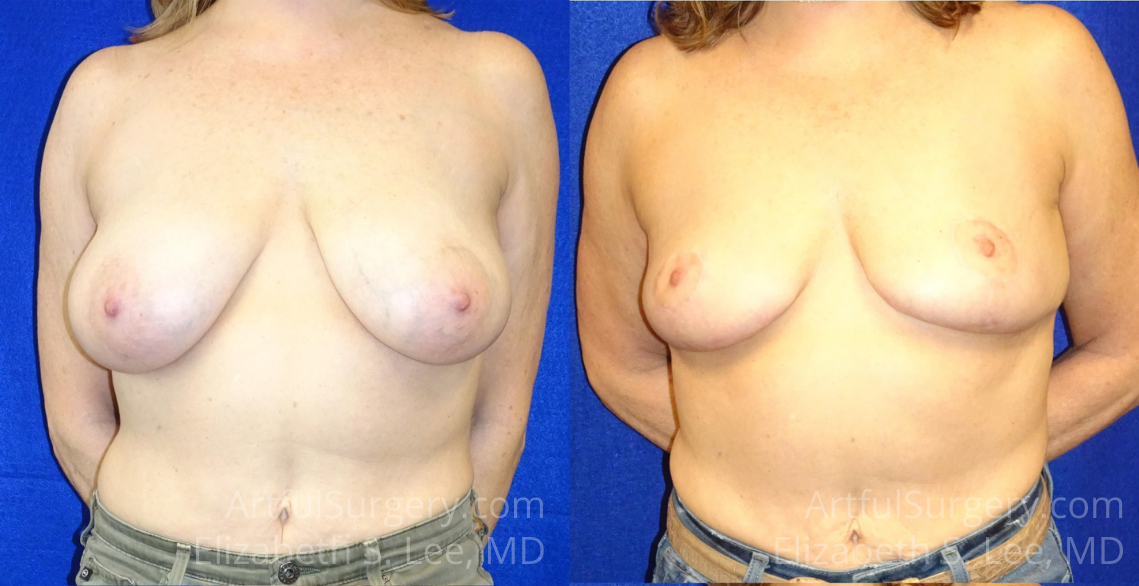 Breast Reduction Before & After Patient #8412