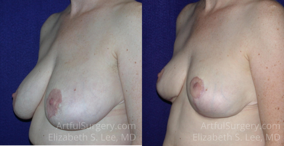Breast Reduction Before & After Patient #573