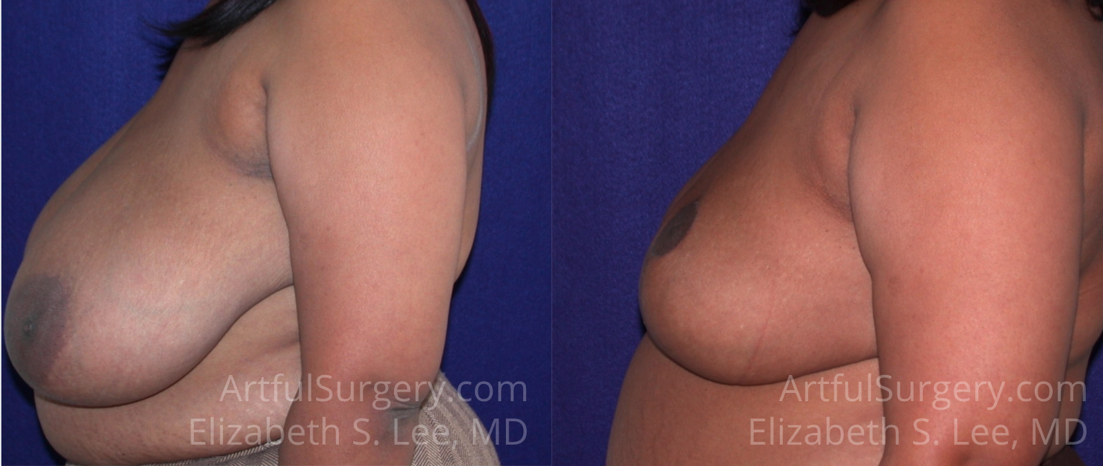 Breast Reduction Before & After Patient #406