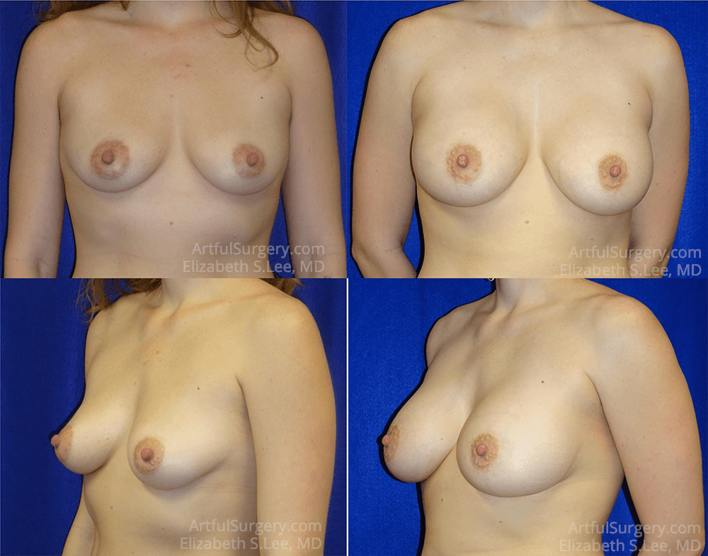 Breast Augmentation Before & After Patient #6980