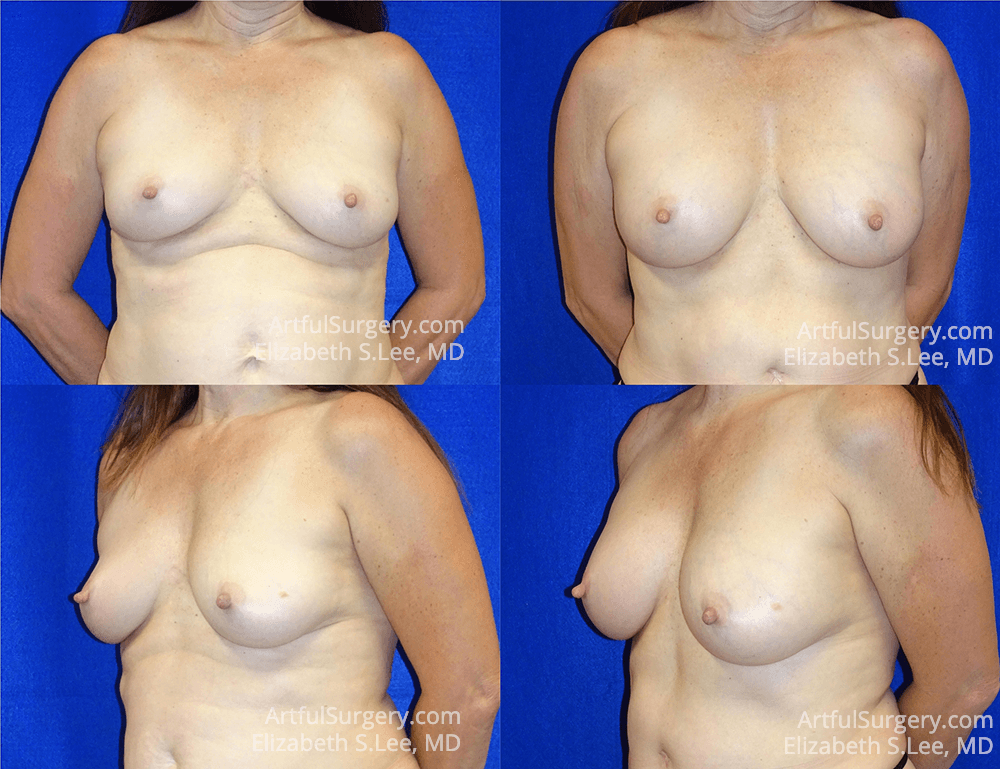 Breast Lift Before & After Patient #1297