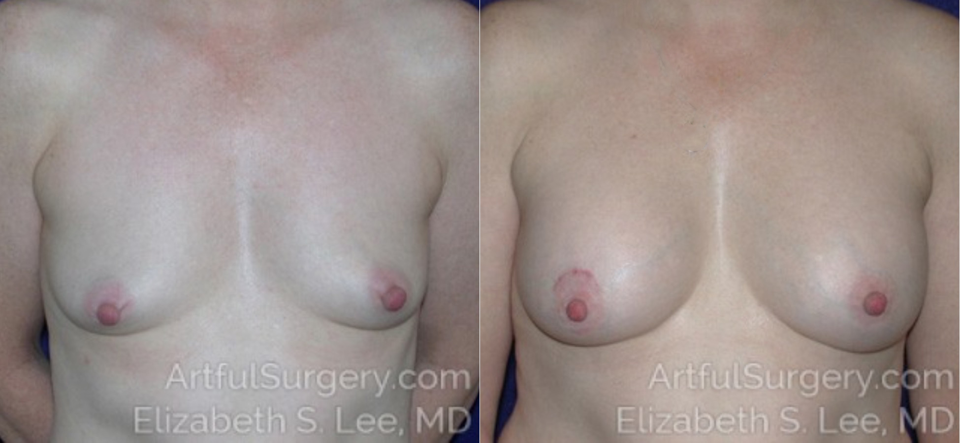 Breast Augmentation Before & After Patient #6930