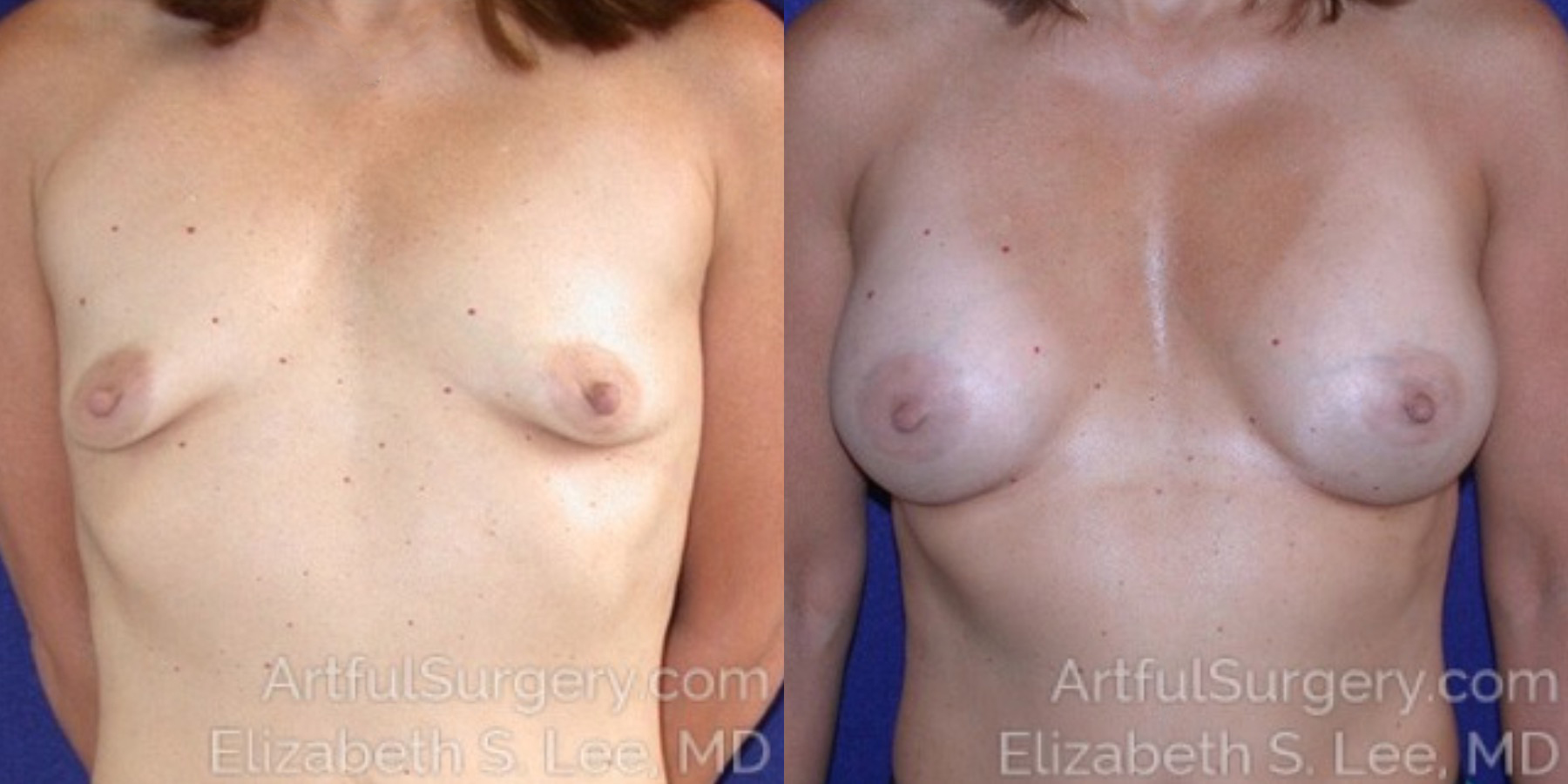 Breast Augmentation Before & After Patient #6630