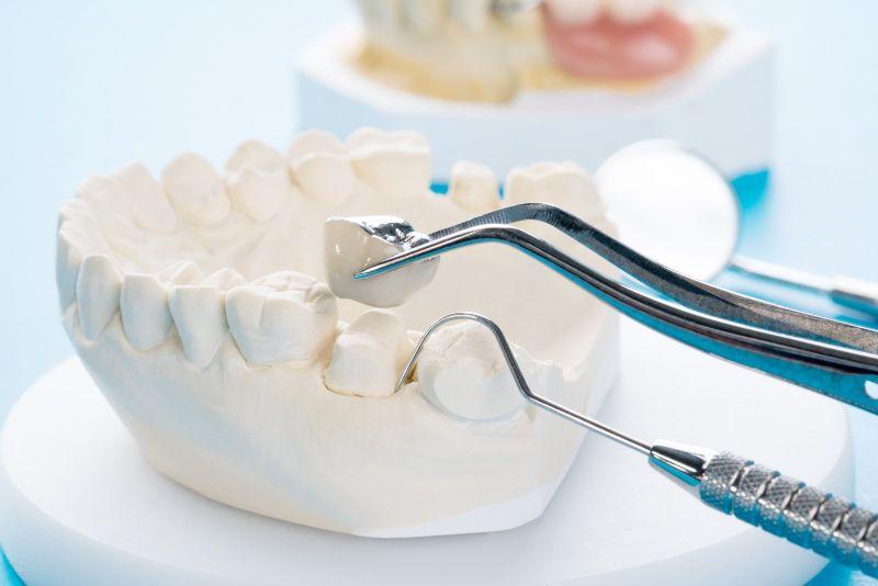 dental crown masthead