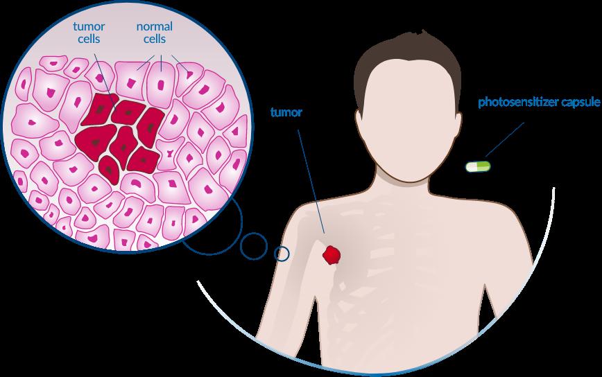 Illumacell treatment 1