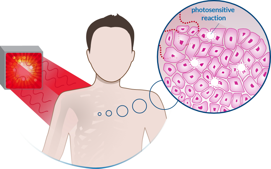 Illumacell treatment 3