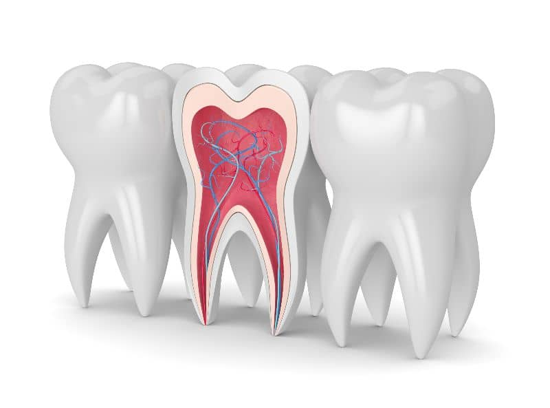 root canal 3d diagram
