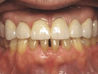porcelain crowns on upper teeth after male