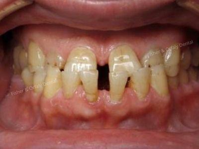porcelain crowns on upper teeth before male