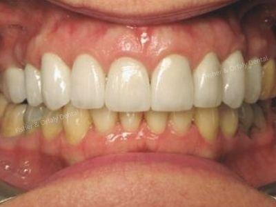 porcelain crowns on upper teeth after female