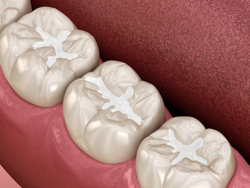 close up of dental sealants