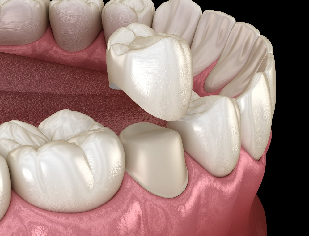 example of a dental crown placement