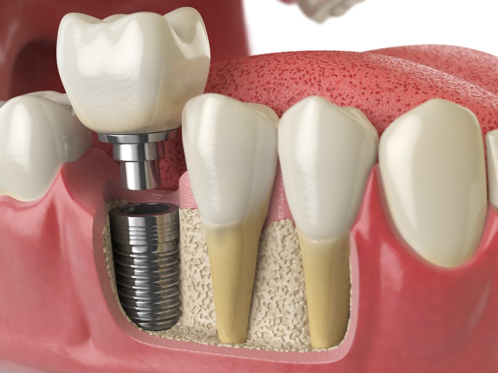 illustration of dental implants