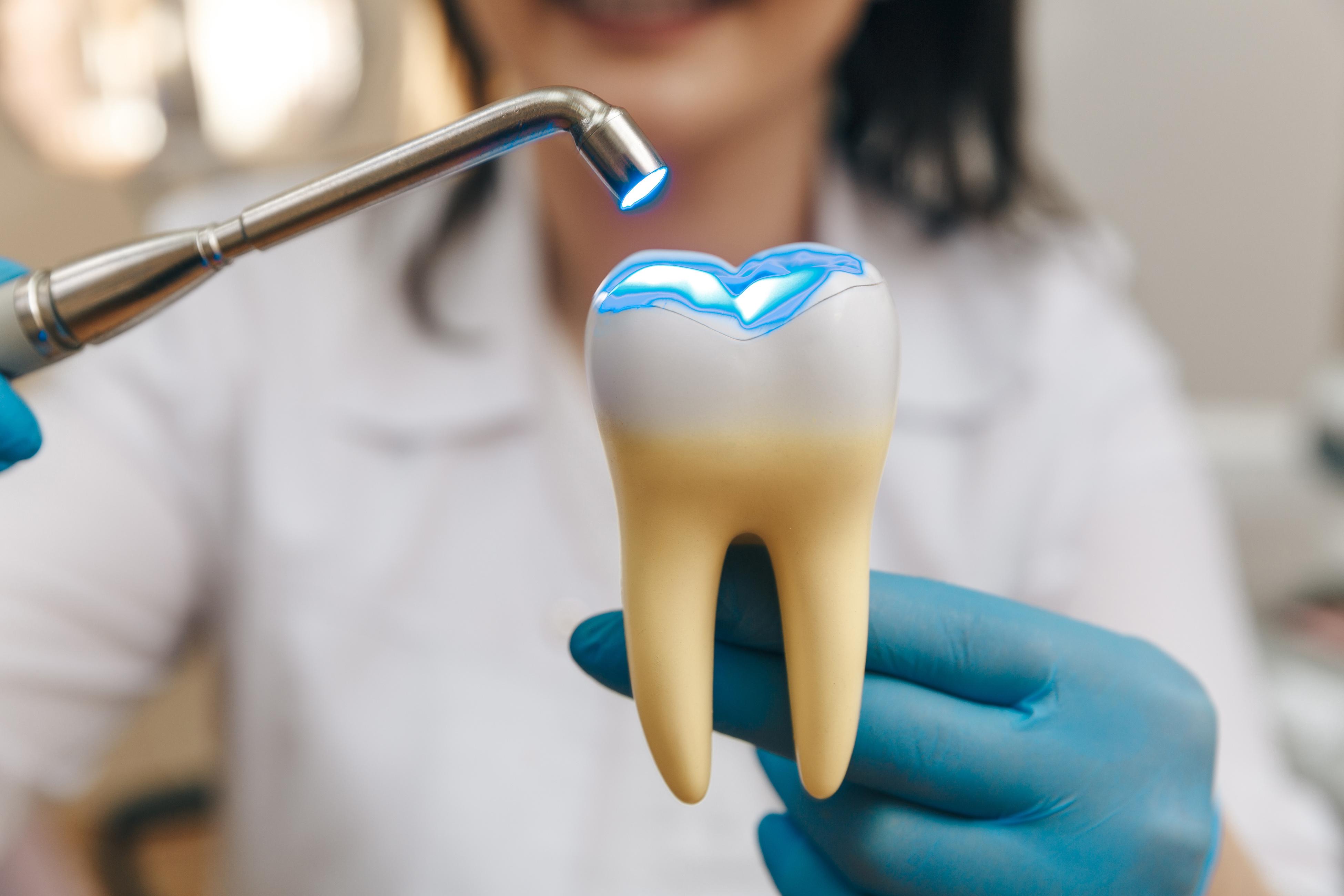 dental filling example