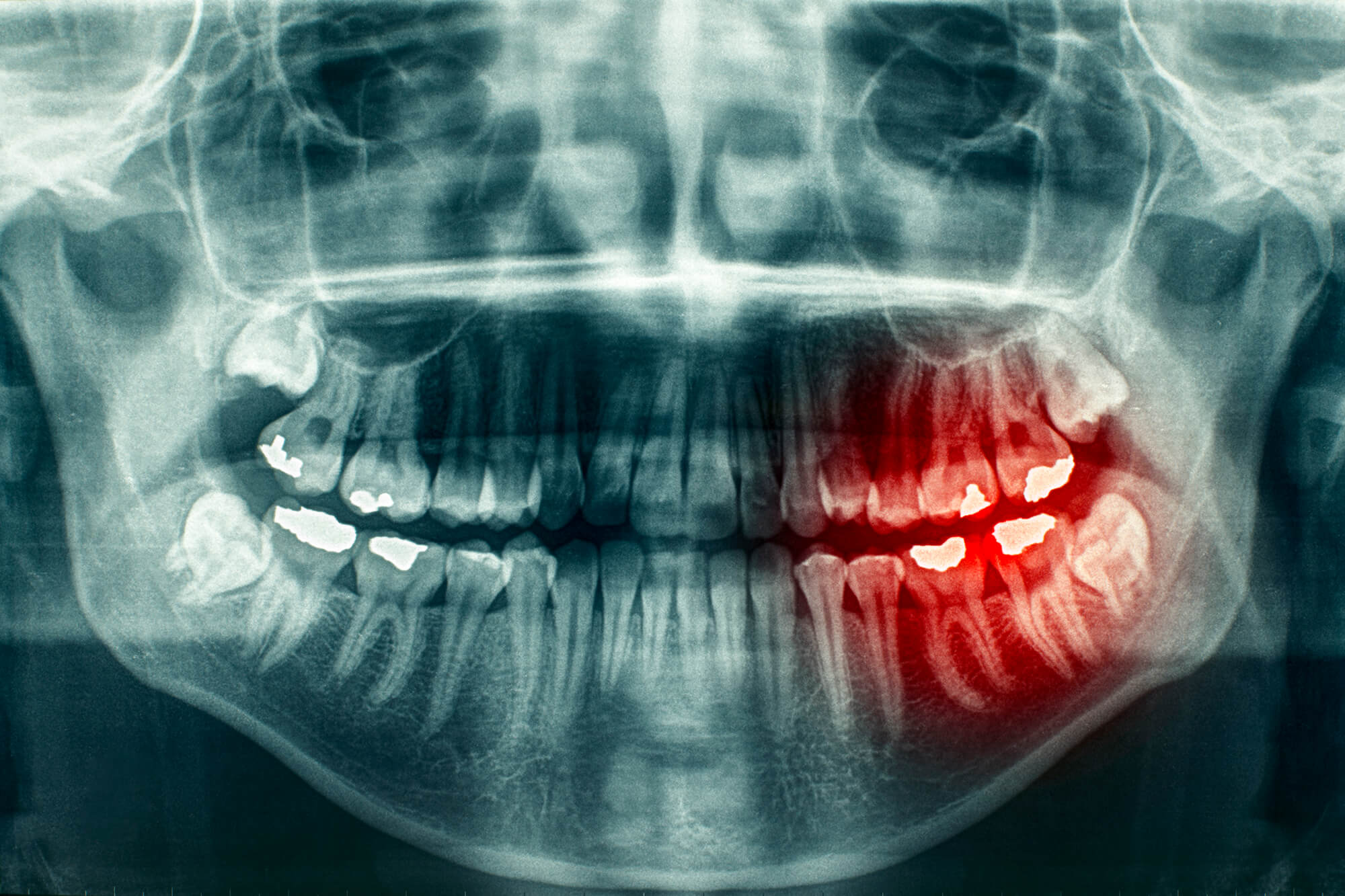 x-ray showing need for Tooth Extractions Franklin NC
