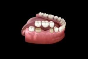 Reasons To Get A Dental Crown Or A Dental Bridge And Everything Else You Need To Know