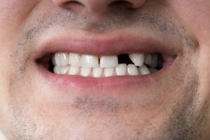 Tooth Loss In Adulthood: How It Occurs And What To Do