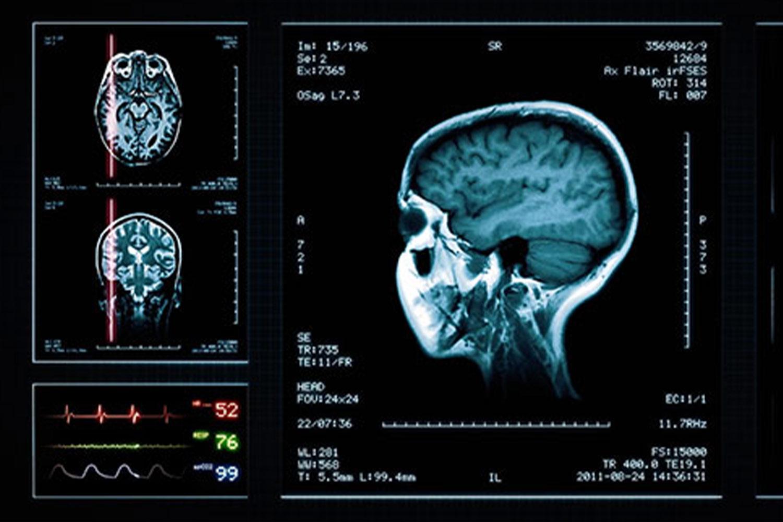 Encompassing 16-Slice OmniTom Scanner