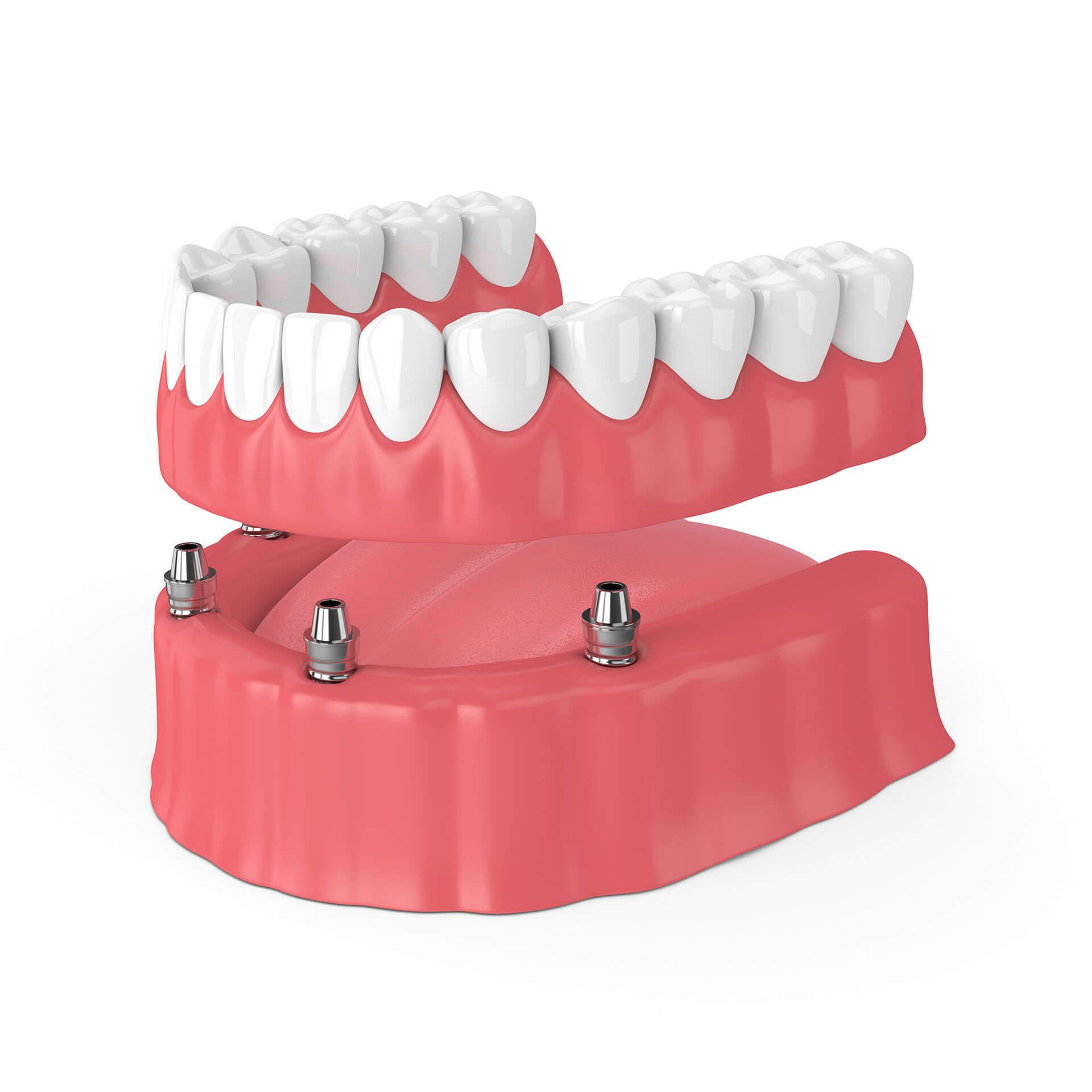 all on 4 dental implants san jose