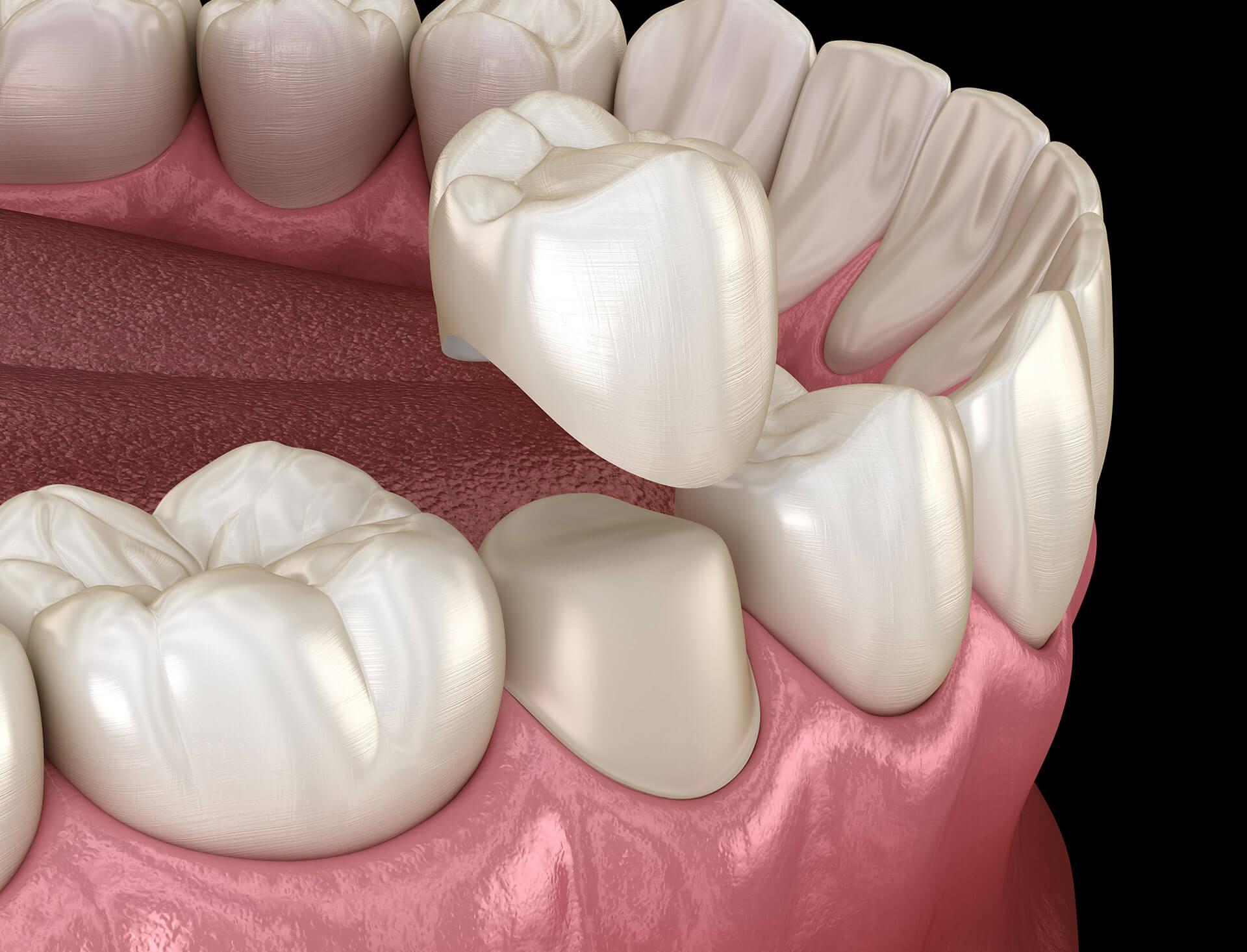 dental crowns san jose