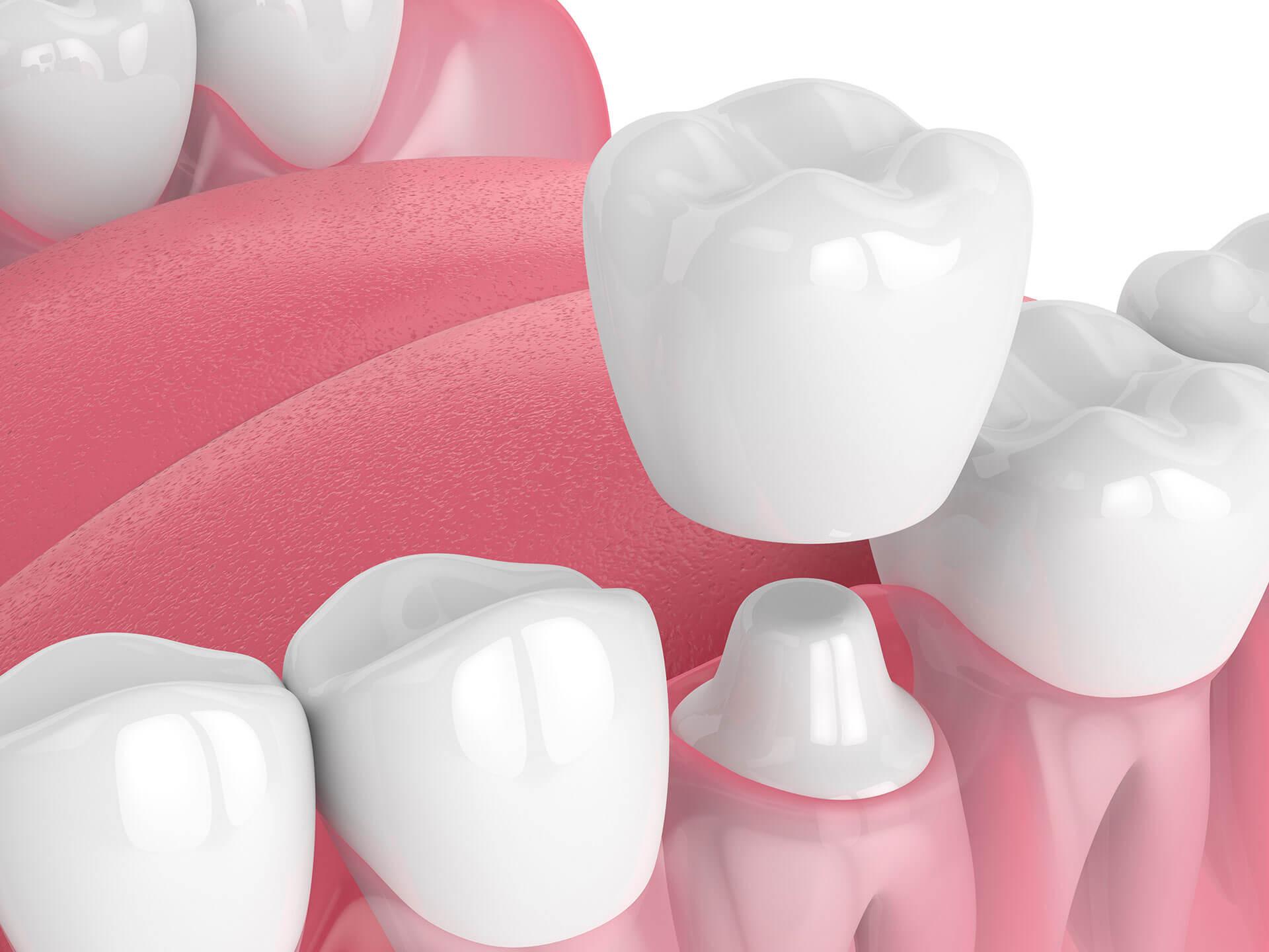 dental crowns san jose ca